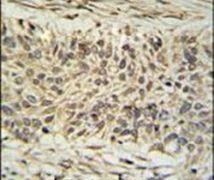 DDX23 Antibody (PA5-24792)