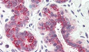 DHRS7 Antibody (PA5-33470)