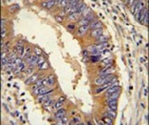 DHX58 Antibody (PA5-25344)