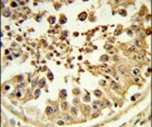 DIAPH2 Antibody (PA5-26414)