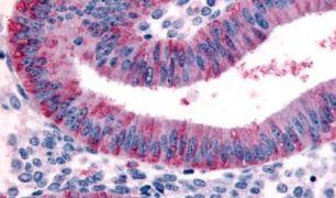 DKK1 Antibody (PA5-32722)