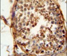 DNAJB13 Antibody (PA5-24368)