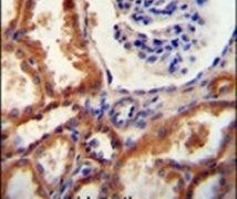 DNAJC22 Antibody (PA5-24357)