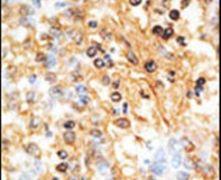 DOK1 Antibody (PA5-14752)