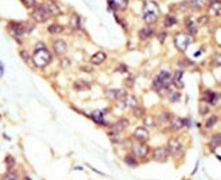 DOK5 Antibody (PA5-14756)