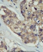 DOK5 Antibody (PA5-14757)