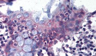 DPEP1 Antibody (PA5-32724)
