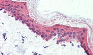 GPR126 Antibody (PA5-33621)