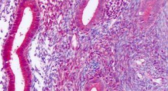 DUSP23 Antibody (PA5-33490)