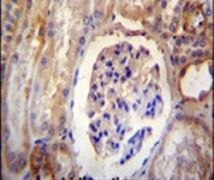 DYNLRB2 Antibody (PA5-23763)