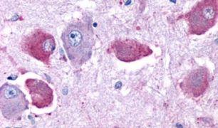 DRD4 Antibody (PA5-33484)