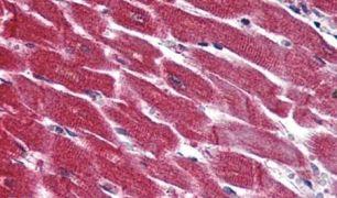 EDG3 Antibody (PA5-33495)