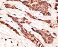 EDG4 Antibody (PA5-13130)