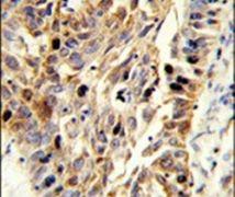 Fibulin 3 Antibody (PA5-26104)
