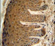 EFTUD2 Antibody (PA5-26296)