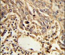 eIF4A2 Antibody (PA5-26198)