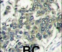 eIF4E Antibody (PA5-11797)