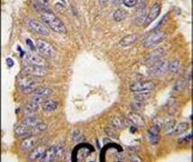 4E-BP1 Antibody (PA5-11830)