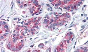 ENTPD2 Antibody (PA5-32750)