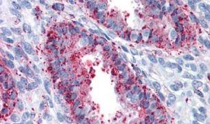 ENTPD2 Antibody (PA5-32751)