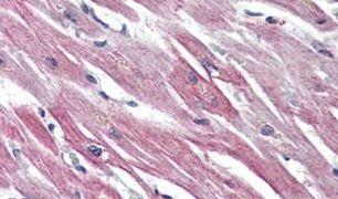 EPHX2 Antibody (PA5-32755)