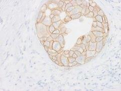 ErbB2 Antibody (MA1-35720)