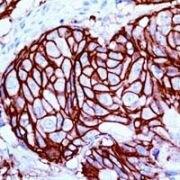 ErbB2 Antibody (MA1-39544)