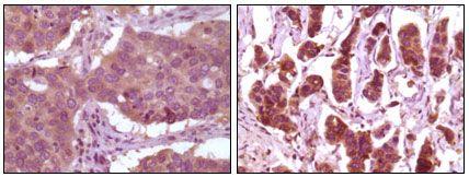 ERK2 Antibody (MA5-15304)
