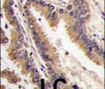 ERK4 Antibody (PA5-14415)