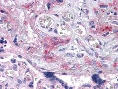 IRE1 alpha Antibody (MA5-15617)