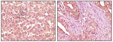 EphA2 Antibody (MA5-15284)