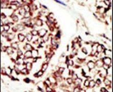 ErbB3 Antibody (PA5-14636)