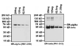 Estrogen Receptor alpha Antibody (MA1-310)