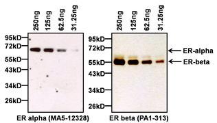 Estrogen Receptor alpha Antibody (MA5-12328)