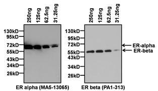 Estrogen Receptor alpha Antibody (MA5-13065)