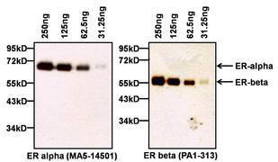 Estrogen Receptor alpha Antibody (MA5-14501)