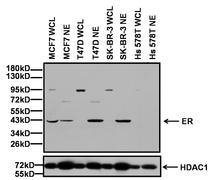 Estrogen Receptor alpha Antibody (PA5-16440)