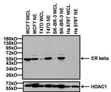 Estrogen Receptor beta Antibody (PA1-310B)