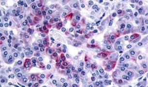 PAR2 Antibody (PA5-33526)