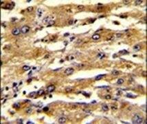 FABP3 Antibody (PA5-13461)