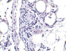 FABP7 Antibody (PA5-20387)