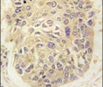 FARSA Antibody (PA5-14508)