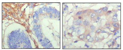 Fibulin 5 Antibody (MA5-15395)