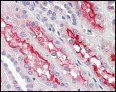 FER Antibody (MA5-15357)