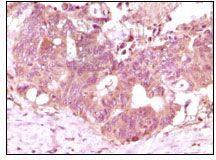 FGF2 Antibody (MA5-15276)