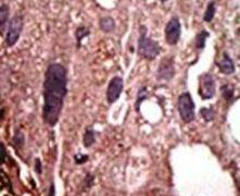 FNTB Antibody (PA5-12159)