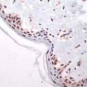 c-Fos Antibody (PA1-37437)