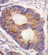 FXN Antibody (PA5-13411)