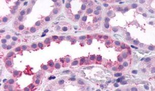 FZD4 Antibody (PA5-33556)