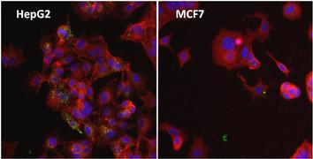 Ferritin Antibody (MA5-14736)